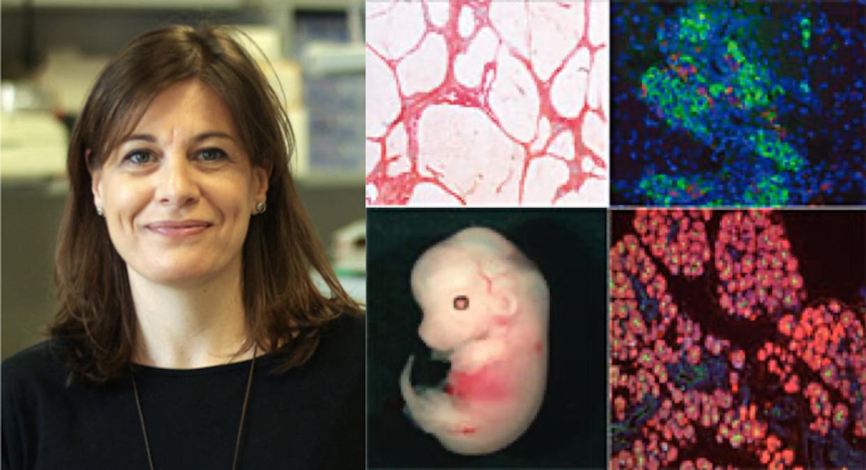 Conferencia: GATA4 en fibrosis hepática